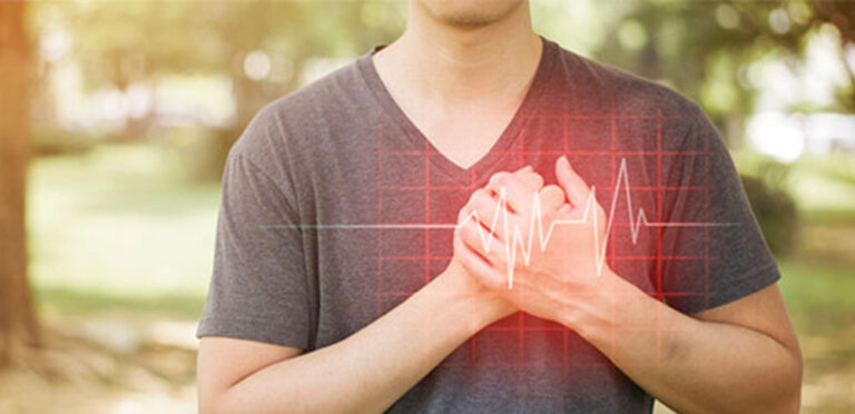srcni infarkt